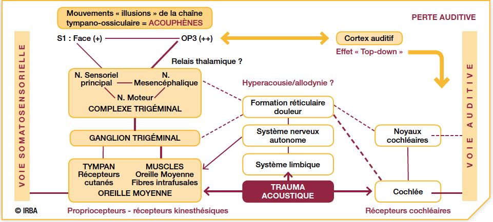 schéma complexe du mécanisme de génération des acouphènes